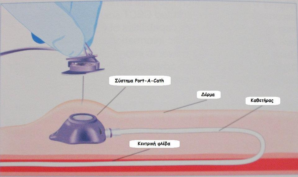 μόνιμος κεντρικός φλεβικός καθετήρας (άρθρο)